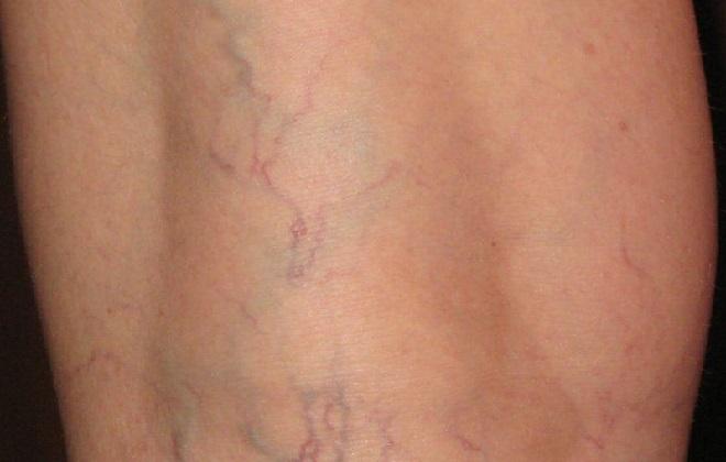 Начальная стадия варикоза ног