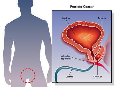 схема лечения кандидозного простатита у мужчин