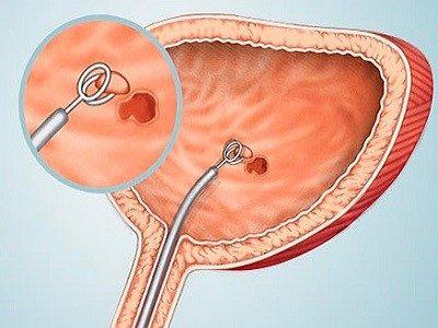 простата препарат гистология