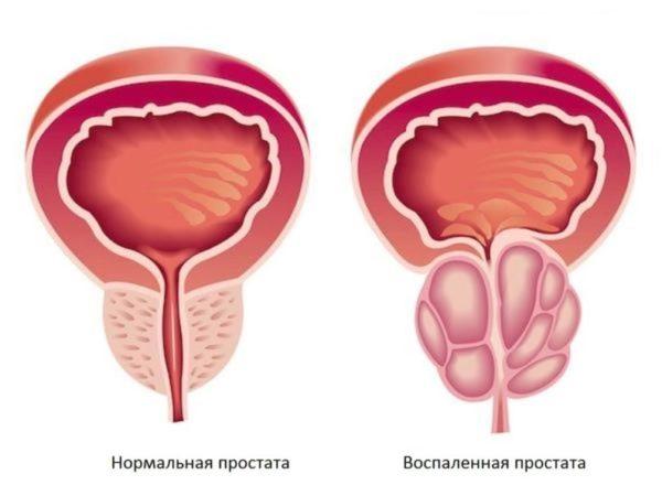 Уретропростатит у мужчин