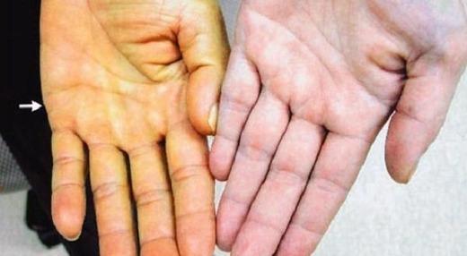 Рука больного и здорового человека