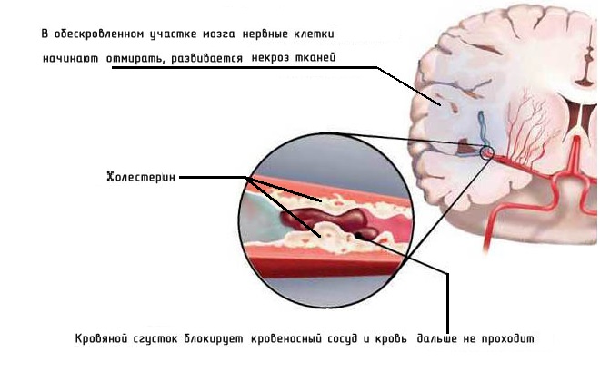 Причиной инсультов является холестерин в сосудах головного мозга