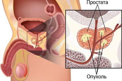 эхопризнаки простатита