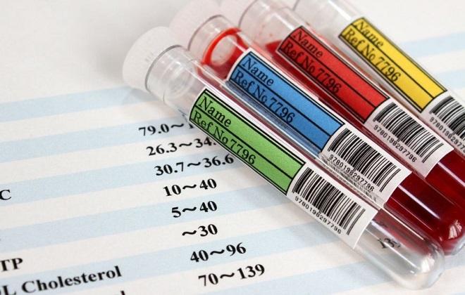 Неорганический фосфор в анализе крови