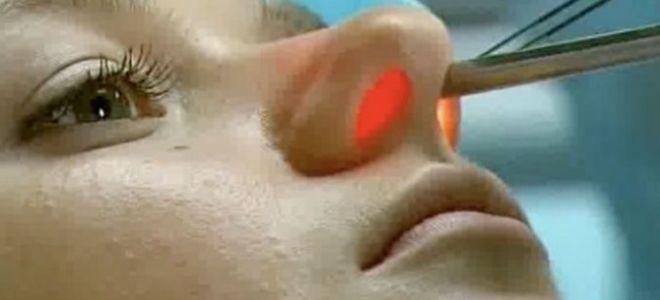 Какие операции проводятся при вазомоторным рините