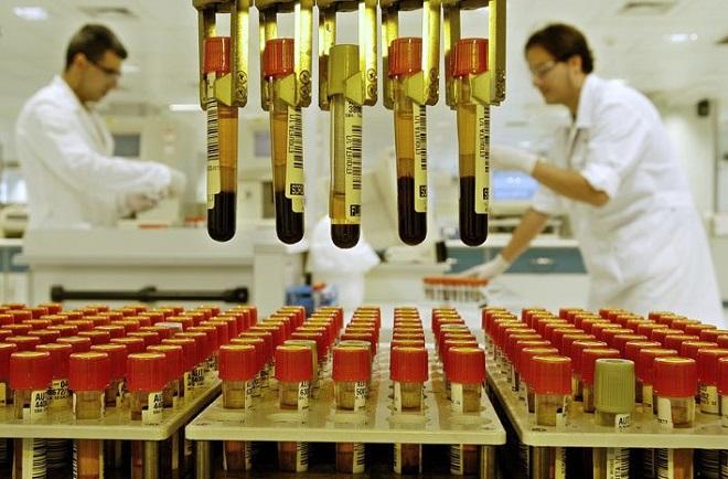 Лабораторный робот делающий химический анализ крови