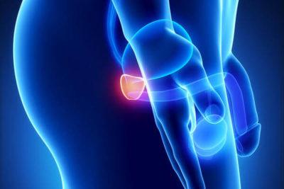 эхопризнаки гиперплазии предстательной железы