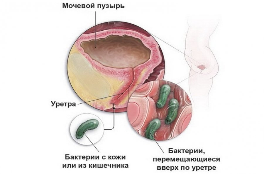 Инфекционный цистит: какими вирусами вызывается и как лечить ...