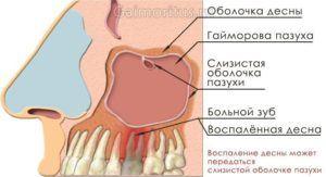 Что такое одонтогенный верхнечелюстной синусит