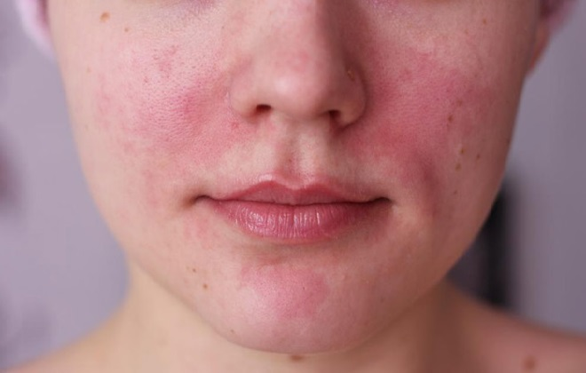 Покраснения на лице у женщины