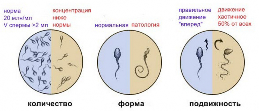 Расшифровка спермограммы: что означают результаты, показатели нормы ...