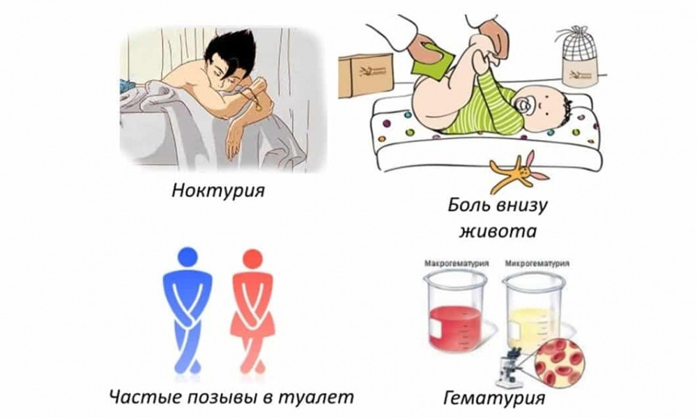Цистит у девочек: причины, симптомы и лечение (препараты, народные ...
