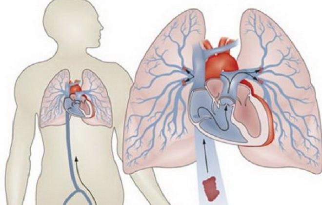 Движение крови в легких человека