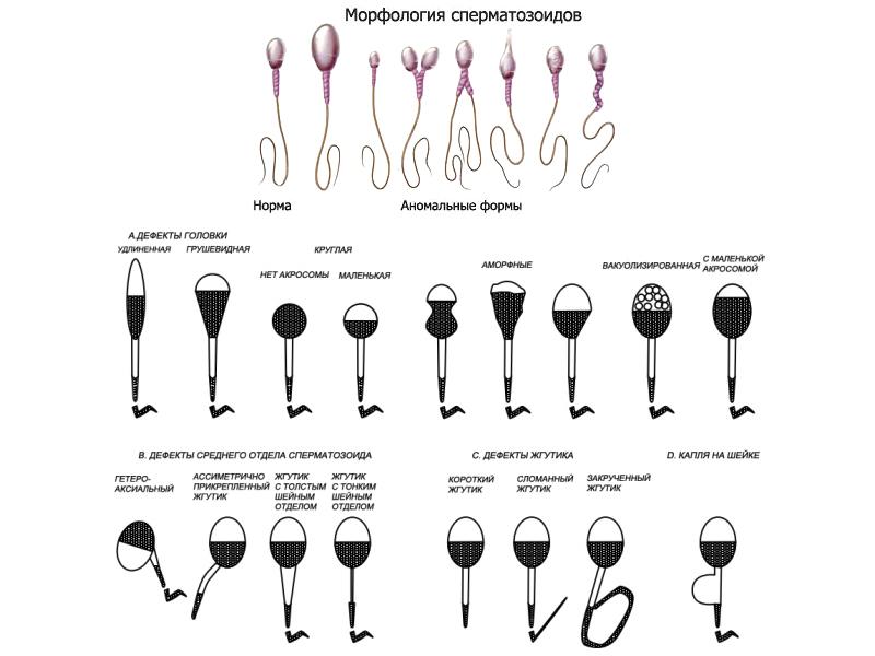 искусственная инсеминация при тератозооспермии