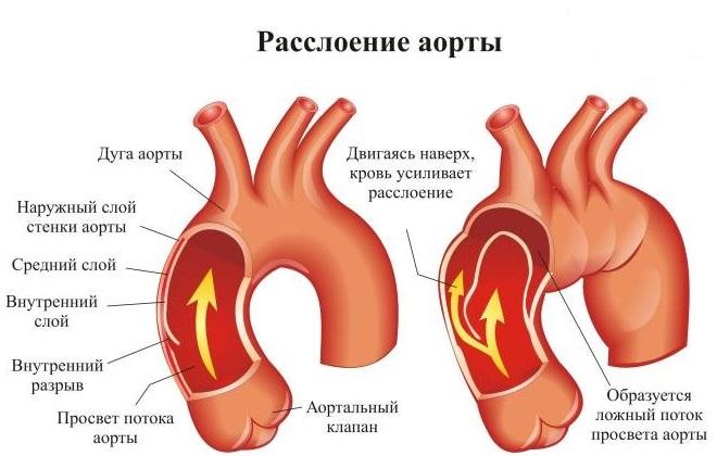 Аорта с расслойкой внутри