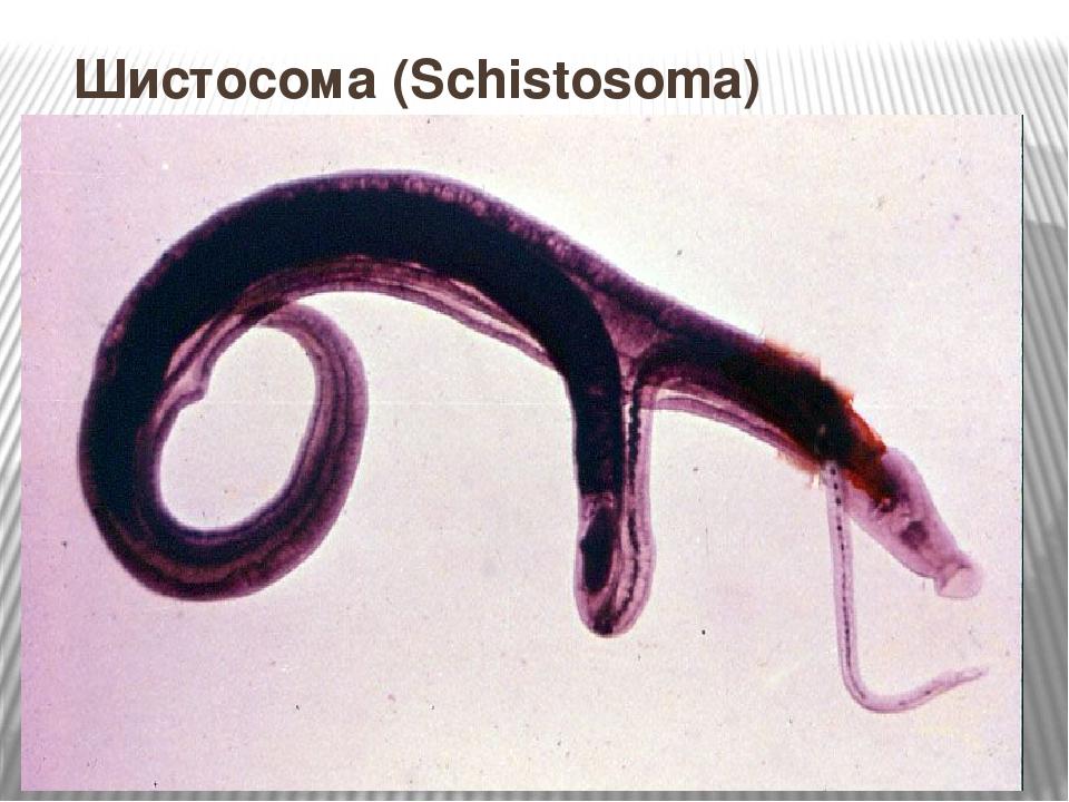 Презентация по ОП. 04 Медицинская паразитология на тему Шистосома