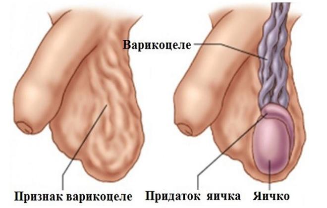 Признаки заболевания для хирургического лечения