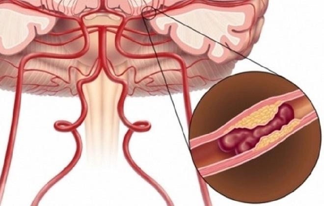 Холестериновая бляшка в сосудах головы