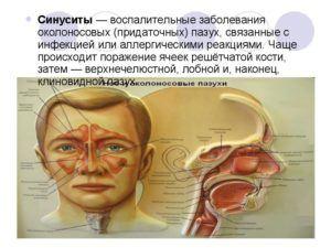 Эффективные ингаляции при синусите