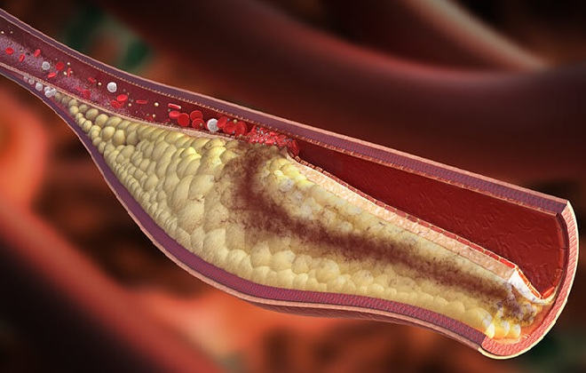 Тромбирование холестерина в сосудах