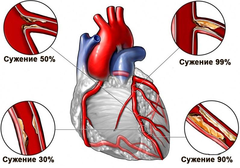 Наглядные признаки закупорки сердечных артерий