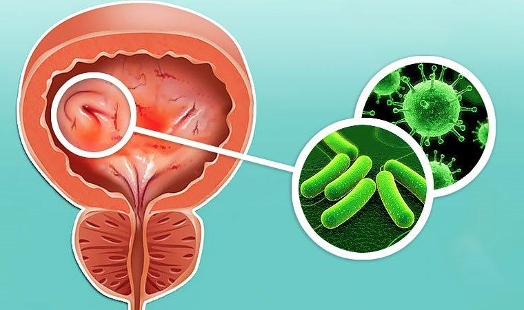 цистит гомеопатия (главный ключ)