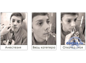 Катетер Ямик