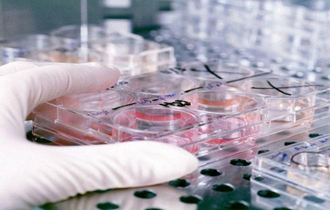Процедура проведения анализа крови на скрытые инфекции передающиеся половым путем