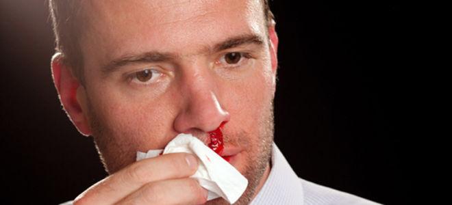 Необходимая первая помощь при носовом кровотечении