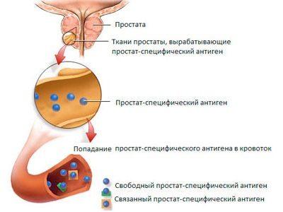 туберкулез простаты симптомы