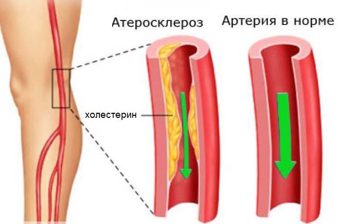 Образование холестериновых бляшек в кровеносных сосудах