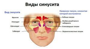 Что такое острый синусит