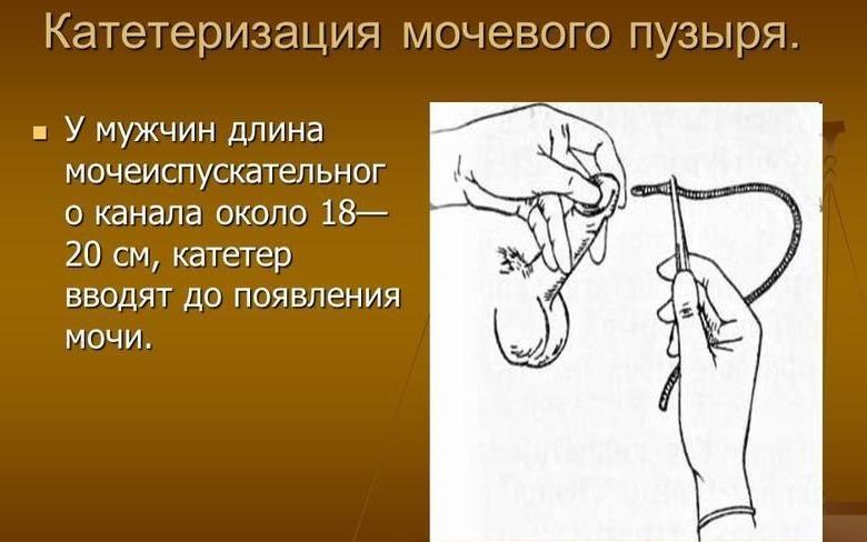 Презентация на тему: Катетеризация мочевого пузыря. Уход за мочевым ...