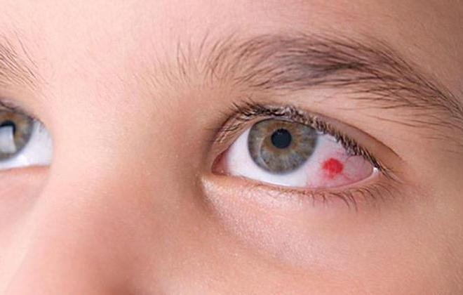 Красные капилляры в левом глазу школьника