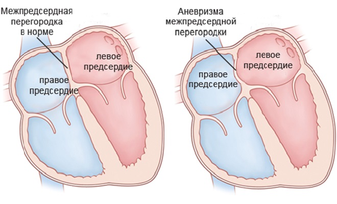 Проявление аневризмы в сердечной перегородке