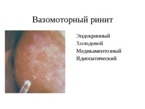 Какое при вазомоторном рините лечение препаратами