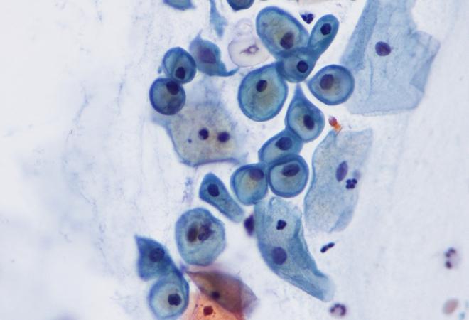 Анемия и фиброз тканей