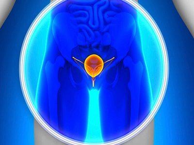 методика лечения простатита