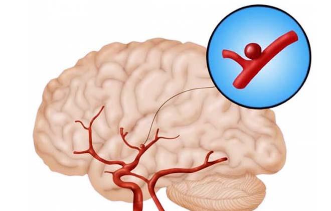 Аневризм головного мозга