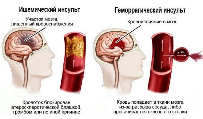 Причины по видам инсульта
