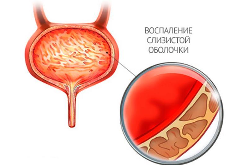 Острый цистит: причины, симптомы, диагностика и лечение
