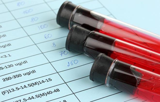 Кровь на ревматические пробы