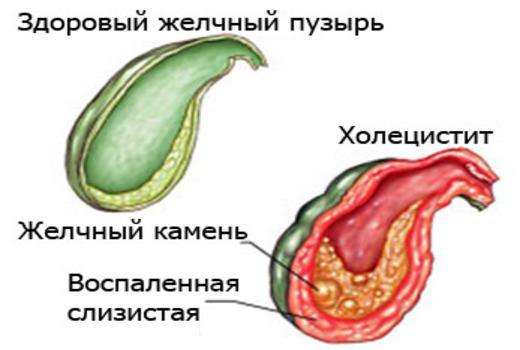 Холецистит или воспаление желчного пузыря