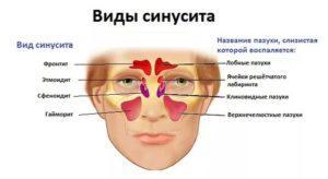 Что такое хронический синусит