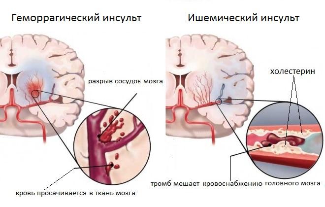 Два полушарья головного мозга с разными видами инсультов