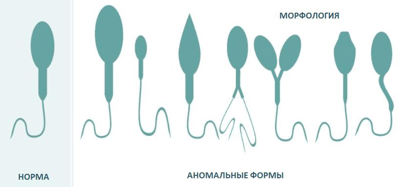Морфология спермограммы по Крюгеру - анализы, расшифровка | ЕЦС