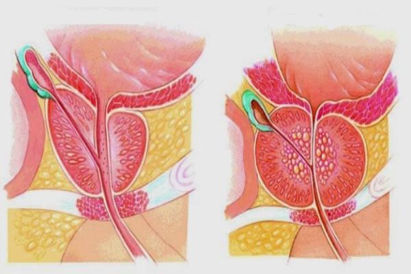 воспалительный процесс предстательной железы