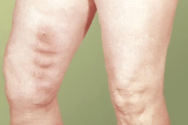 Увеличение вен на ноге похоже на варикоз