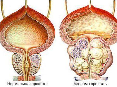 узловое образование предстательной железы