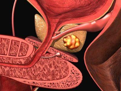 болезни предстательной железы у мужчин лечение